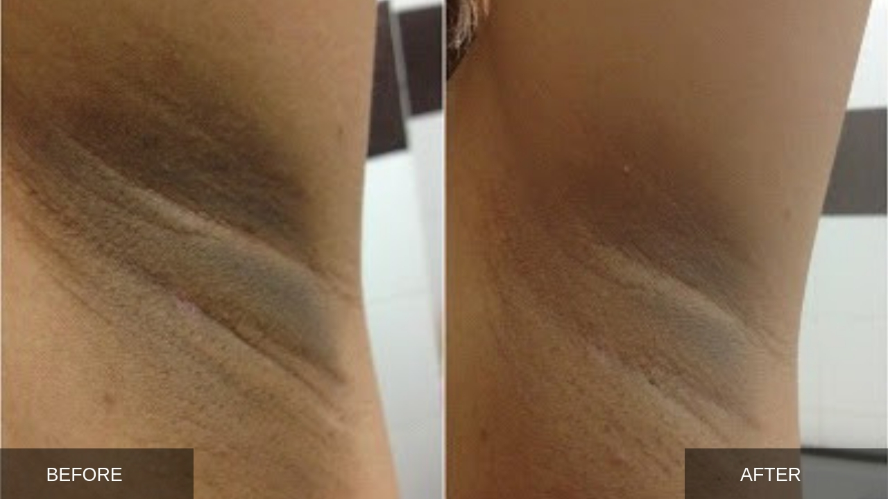 BEFORE AND AFTER - UNDERARM LIGHTENING