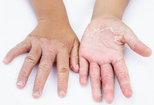 Dry hands, peel, Contact dermatitis, fungal infections, Skin inf